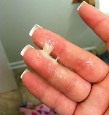 Yeast Infection Discharge: Color, Itching After Treatment ...