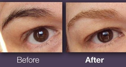 How To Get Rid Of Tattooed Eyebrows Naturally