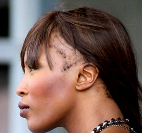 hairstyles for receding hairline at temples female