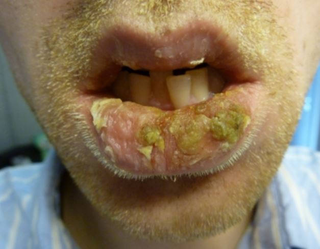 Crusty lips causes pictures how to get rid of dry